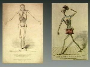 Seriously, looking like this does not help you dance better. Source: This file comes from Wellcome Images, a website operated by Wellcome Trust, a global charitable foundation based in the United Kingdom.  Licensed under Creative Commons 4.0.