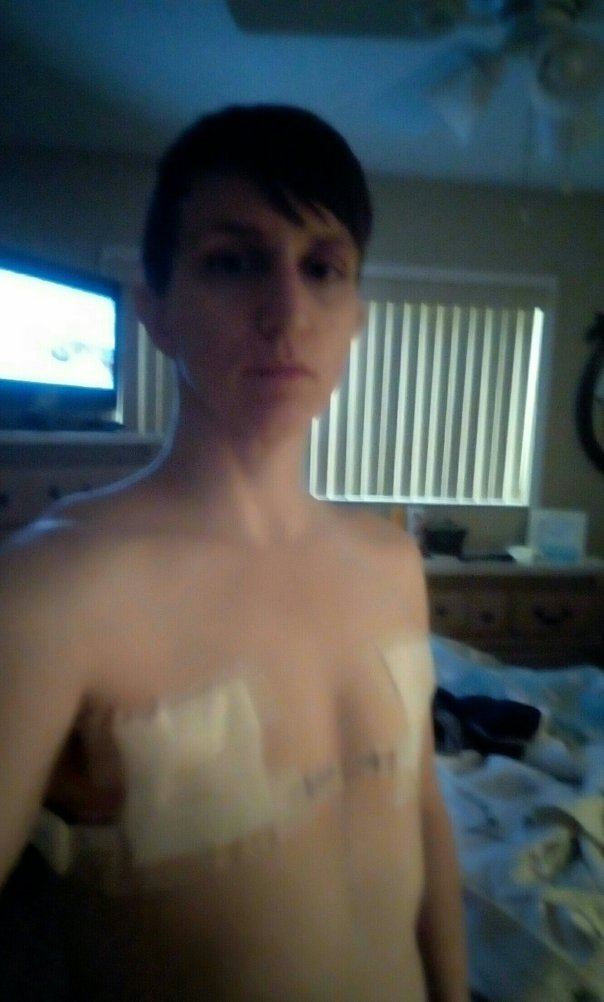 Me in my super-sexy hospital pasties.