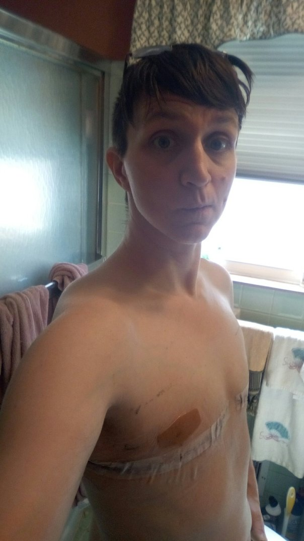 Me. Half-naked. With leftovers adhesive that just won't go away.